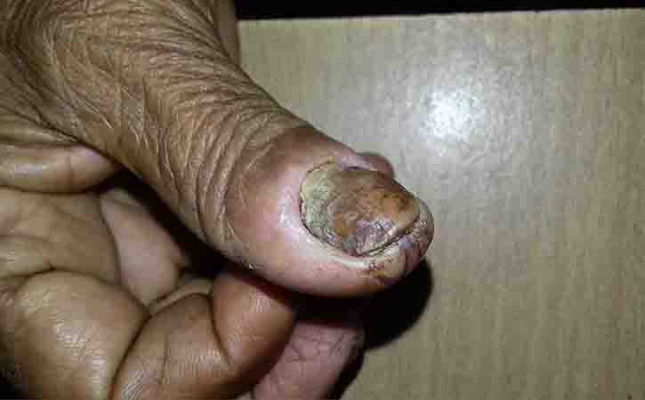 Learn more about Gangrene