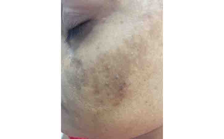 Melasma also known as chloasma faciei