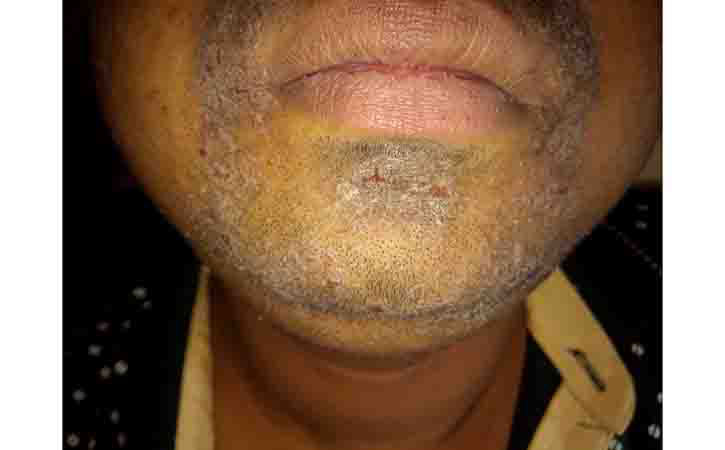 More of Seborrheic Eczema