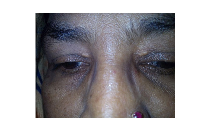 More about Xanthelasma