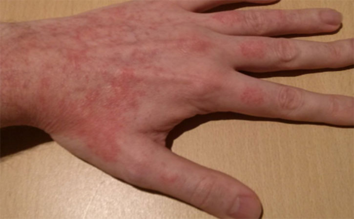 Contact Dermatitis