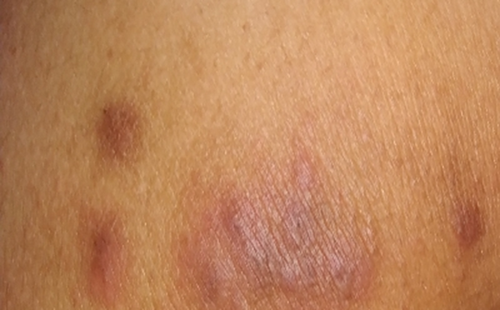 Nummular Eczema