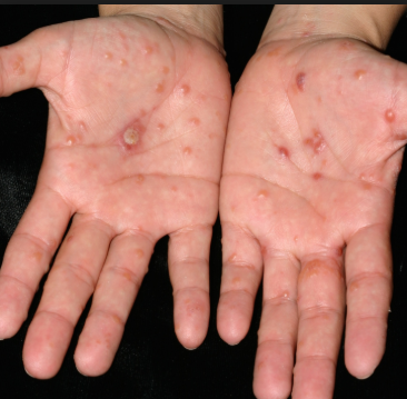 more about Dyshidrotic eczema (pompholyx)