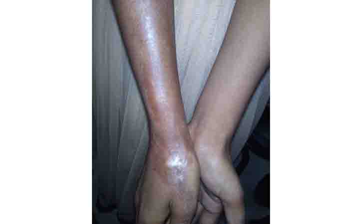 Scleroderma is a group of autoimmune diseases