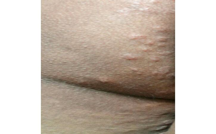 Hives, also known as urticaria