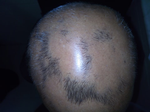 Alopecia Areata Advanced stage