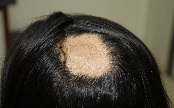 learn more of Alopecia Areata