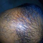 Alopecia_Pattern