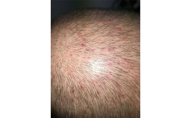 Picture of Folliculitis on head
