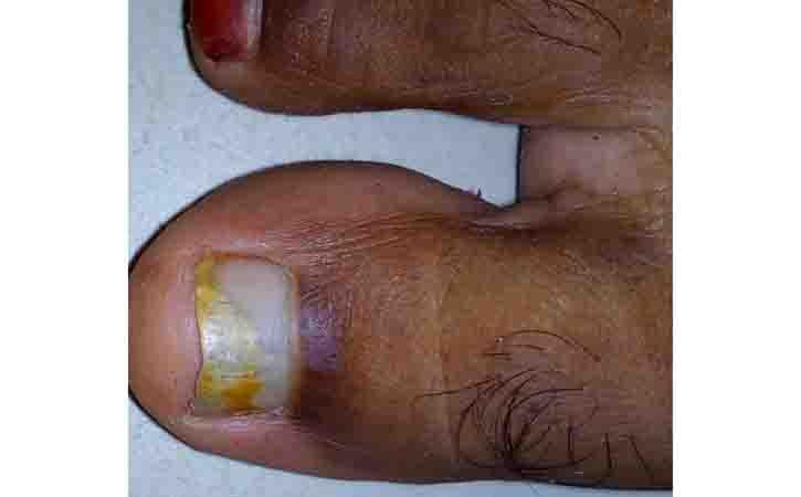 Learn More of Onychomycosis