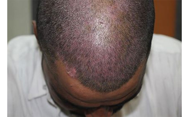 Scalp Psoriasis picture
