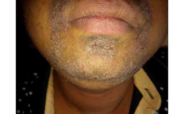Seborrheic Eczema