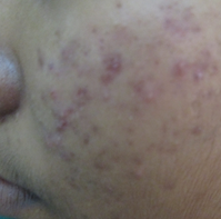 Red spots on face due to Acne