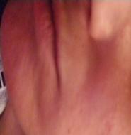 Reddish rash on face due to Rosacea