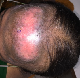 Red patch on the forehead due to SLE
