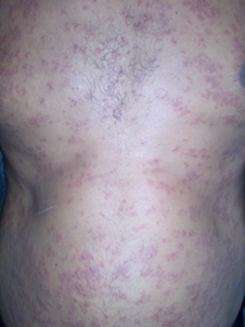 Guttate Psoriasis on the Trunk and Body