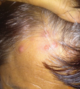 Red bumps on hair follicle due to Follucilitis