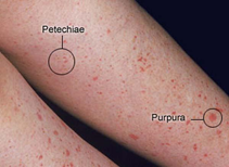 Certain Platelet disorders causing red spots on feet and legs