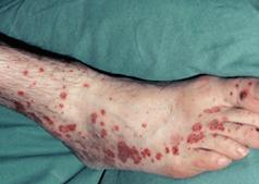 Vasculitis on Legs