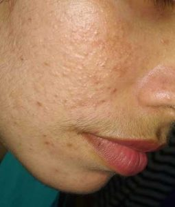Home remedies and OTC treatment for Mild Acne