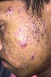 Treatment in Grade 4 Acne