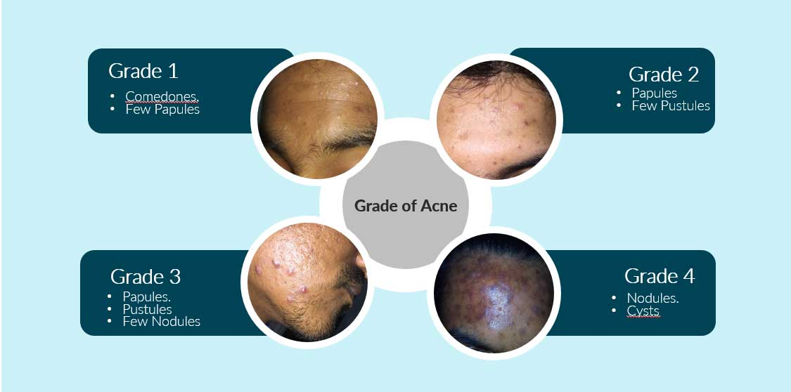 4 Stages of Acne and its Treatment