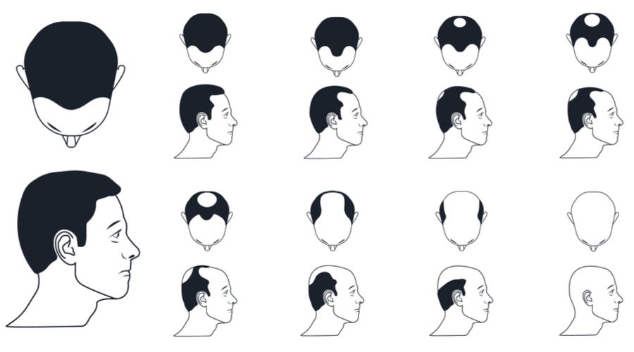 Different types of Hair loss and it's Treatment