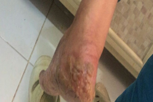 Psoriasis on feet