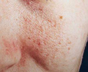 Urticarial rash