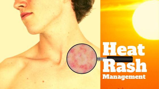 Heat Rash Causes and Management